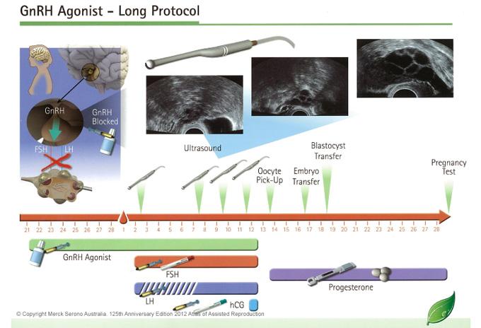 IVF Agonist Cycle
